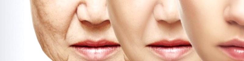 Zmarszczki na ustach